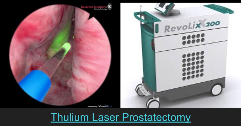 Prostate Laser Működési Vélemények
